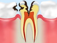 C3【神経まで達した虫歯】