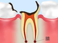 C4【歯根まで達した虫歯】