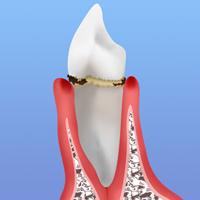 歯肉炎歯周ポケット2~3mm程度