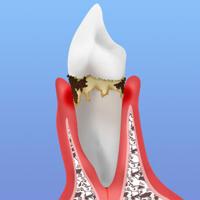 初期歯周ポケット3~4mm