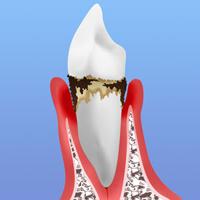 中期歯周ポケット4~5mm