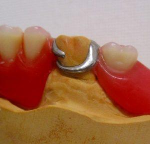 ゆるい!合わない!痛い!そんな時は入れ歯の リフォームをしましょう②