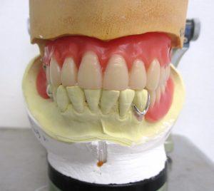 歯医者と歯科技工士との関係②
