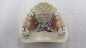 金属で出来た入れ歯?(金属床義歯)②