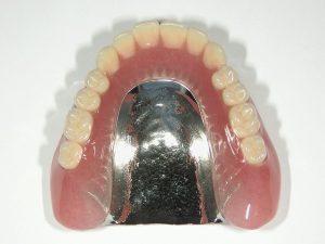 総入れ歯でも金属を使った入れ歯が製作可能です。