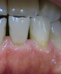 歯がしみる!これって虫歯?知覚過敏症の治療方法②