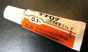 痛い口内炎、何とかならないの?(原因・治療方法)