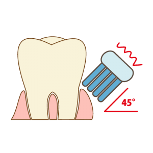 teeth-cleaning006[1]