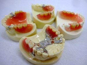 入れ歯を作る前に作る入れ歯って?~治療用義歯~