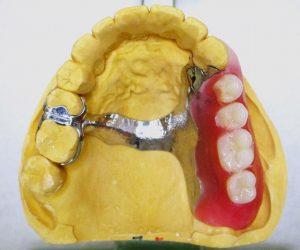 入れ歯のメンテナンス(点検)してますか?